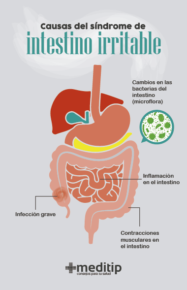 Causas del síndrome de intestino irritable