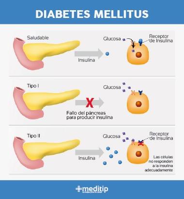 Diferencias entre diabetes tipo 1 y diabetes tipo 2: infografía