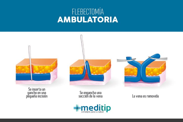Tratamiento de várices - Flebectomía ambulatoria