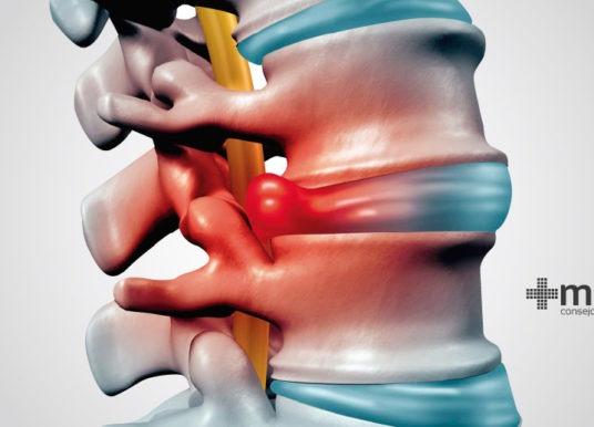 Hernia de disco: definición, diagnóstico y tratamiento