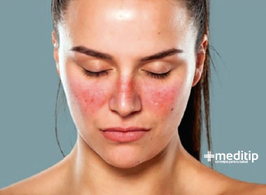 Enfermedades autoinmunes - Lupus