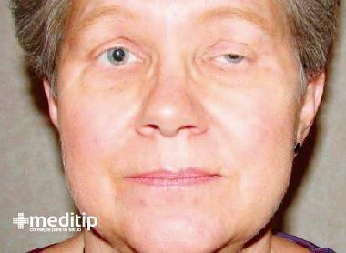 Enfermedades autoinmunes - Miastenia gravis