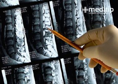 Diagnóstico de hernia de disco: resonancia magnética