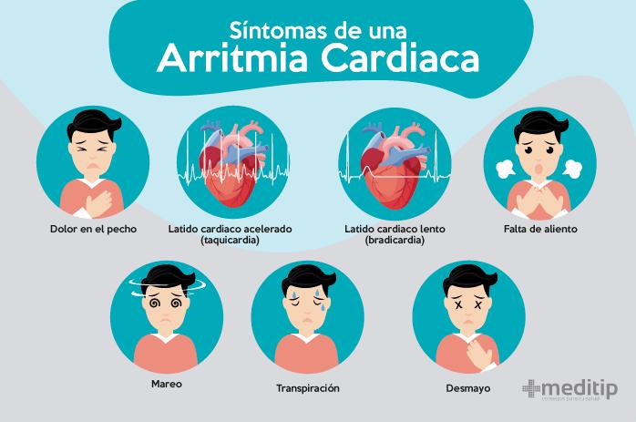 Síntomas de una arritmia cardiaca