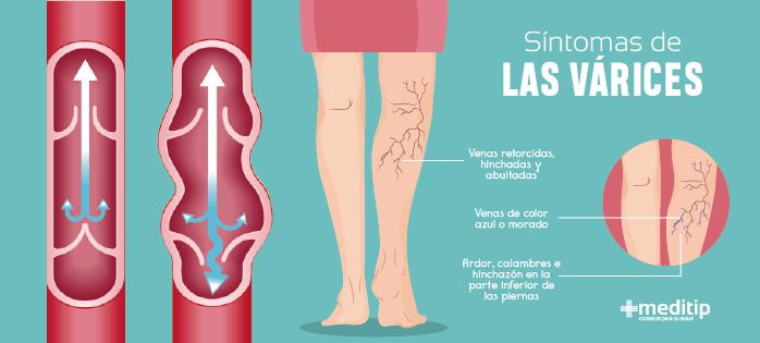 Síntomas de las várices o venas varicosas
