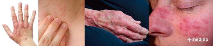 Tipos de dermatitis de contacto