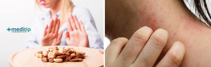 Tipos principales de alergias