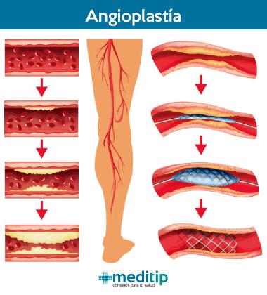 Tratamiento de la enfermedad arterial periférica: angioplastía