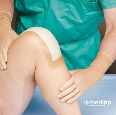 Mitos del tratamiento de heridas: apósito para heridas quirúrgicas