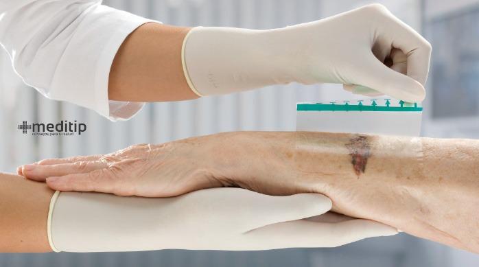 Heridas abiertas: uso de apósitos