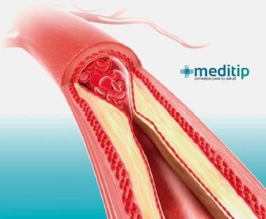 Causas de la enfermedad arterial periférica: arteria obstruida por acumulación de placa