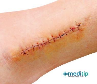 Cicatrización de herida abierta