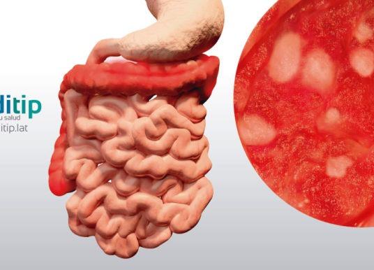 Colitis ulcerosa: causas, diagnóstico y tratamiento