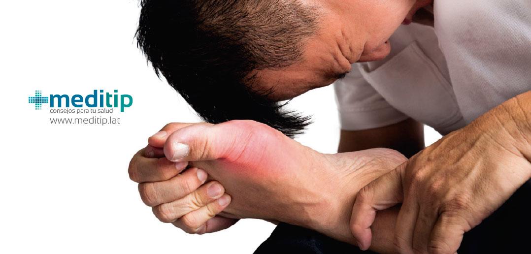 Gota: inflamación por ácido úrico