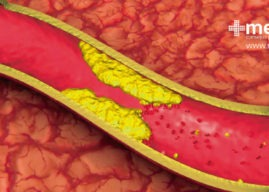 Enfermedad arterial periférica: causas, síntomas y tratamiento