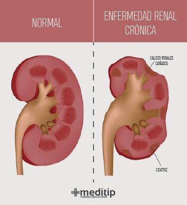 ejemplos de enfermedades renales