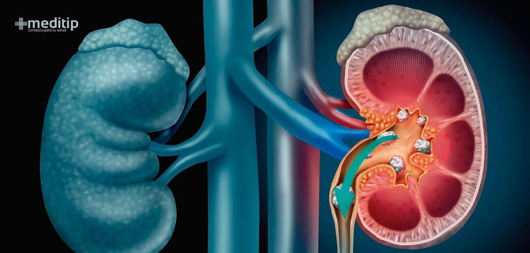 Insuficiencia renal cronica sintomas y tratamiento