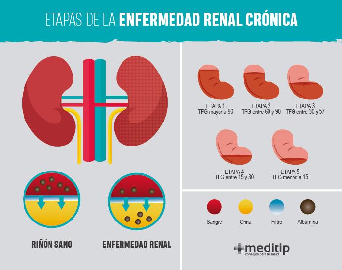 Infografía: etapas de la enfermedad renal crónica