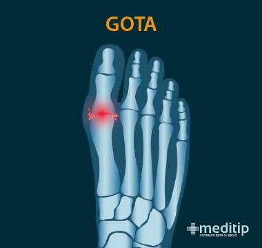 Tipos de artritis: Gota