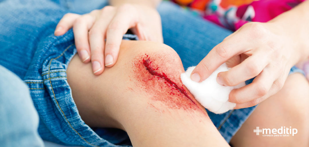 Resultado de imagen para tratamiento de heridas