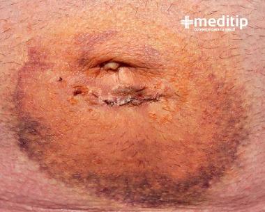 Hernia después de una cirugía