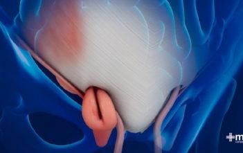 Hernia femoral