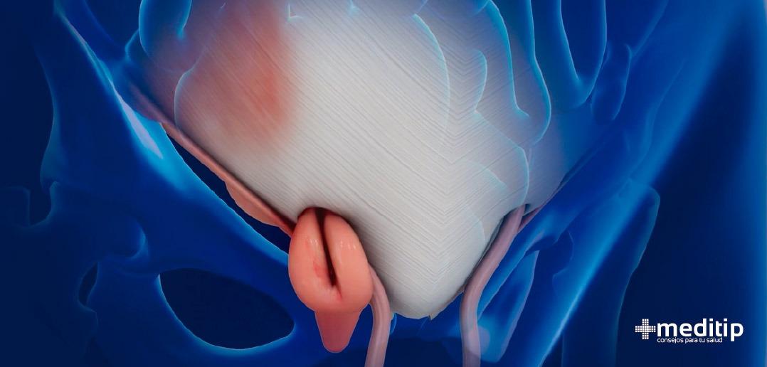 Hernia femoral: causas, tipos y tratamiento - Meditip
