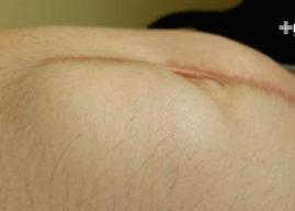 Hernia incisional: causas, síntomas y tratamiento