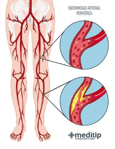 Dolor de pierna: enfermedad arterial periférica