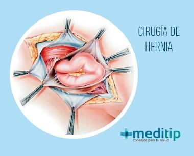 Ilustración de cirugía de reparación de hernias