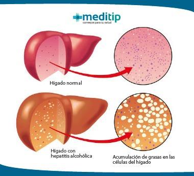 Ilustración de la hepatitis alcohólica