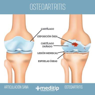 Infografía de osteoartritis o artrosis