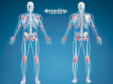 Sistema óseo: huesos y articulaciones
