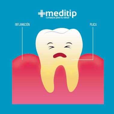 Consecuencias de no usar hilo dental