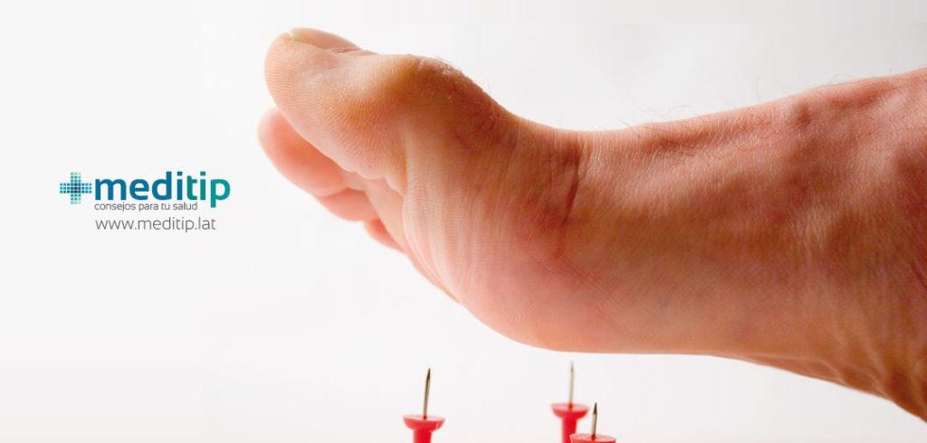 Prevención del pie diabético: síntomas del pie diabético, neuropatía diabética