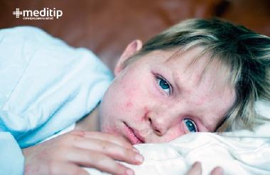 Primeros síntomas del sarampión: niño con malestar y fiebre