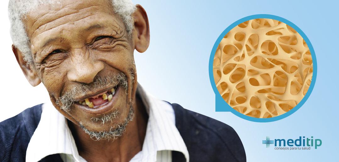 Osteoporosis y la pérdida de dientes