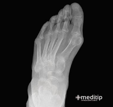 radiografía de juanete