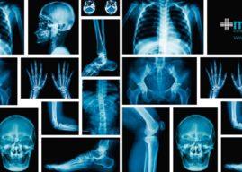 Sistema óseo: composición y función de los huesos