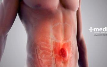 Tratamiento de hernias