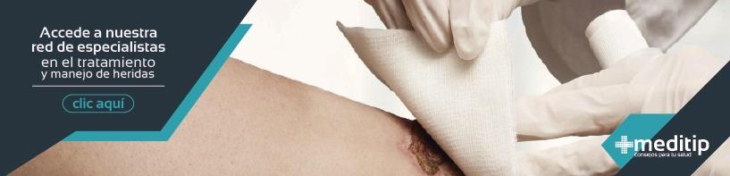 Consulta de valoración de heridas con un precio especial