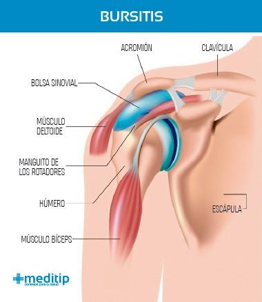 Dolor de hombro: bursitis