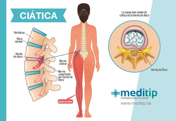 Dolor de pierna: problemas de la columna vertebral; ciática