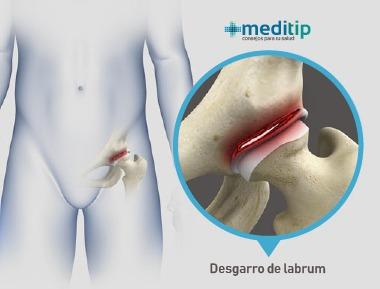 Dolor de cadera: desgarro de labrum