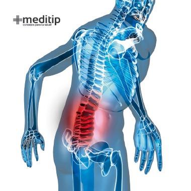 Causas del dolor de espalda: enfermedad degenerativa del disco