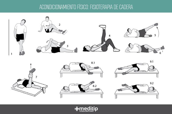 Fisioterapia de cadera: acondicionamiento físico
