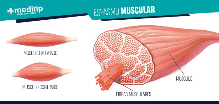 Dolor de cuello: espasmo muscular