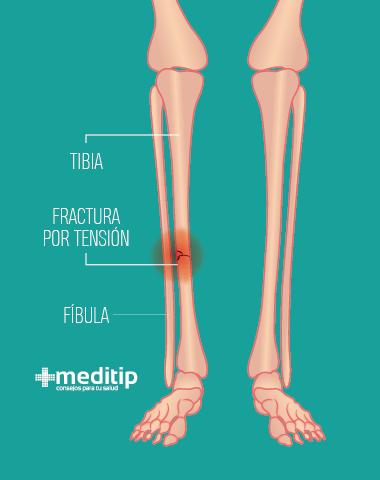 dolor de pierna: fractura por tensión (estrés mecánico)