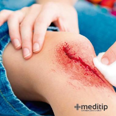 Mitos del tratamiento de heridas: herida abierta