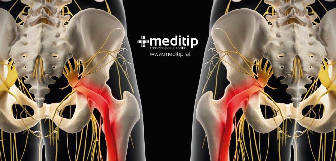 Ciática o dolor de ciática: causas, síntomas y tratamiento - Meditip